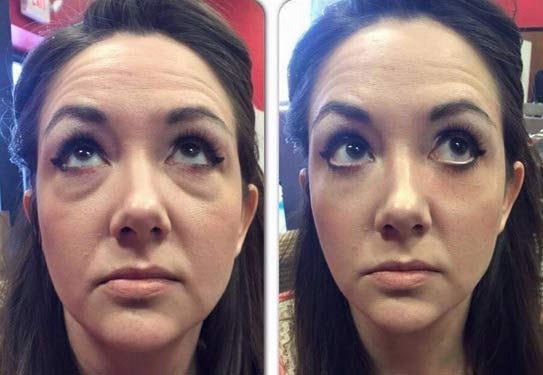 instantly-ageless-jeunesse-before-and-after-pics-01
